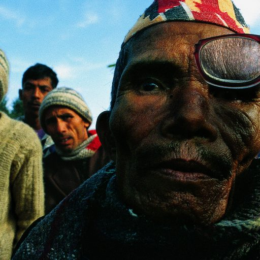 A moutain peasant stands in line with hundreds of other Nepalis at an eye clinic camp setup in the rural areas and hosted by hospitals and doctors from Kathmandu, Nepal.  Thesurgeons check for cataracts, one of the most common afflictions, and can do an operationin ten minutes.  Patients stay overnight camping out in tents and nearby buildings and arechecked the next day to make sure they can return home.  Some walked dozens of milesto get here.  Some patients are also given eye glasses. b